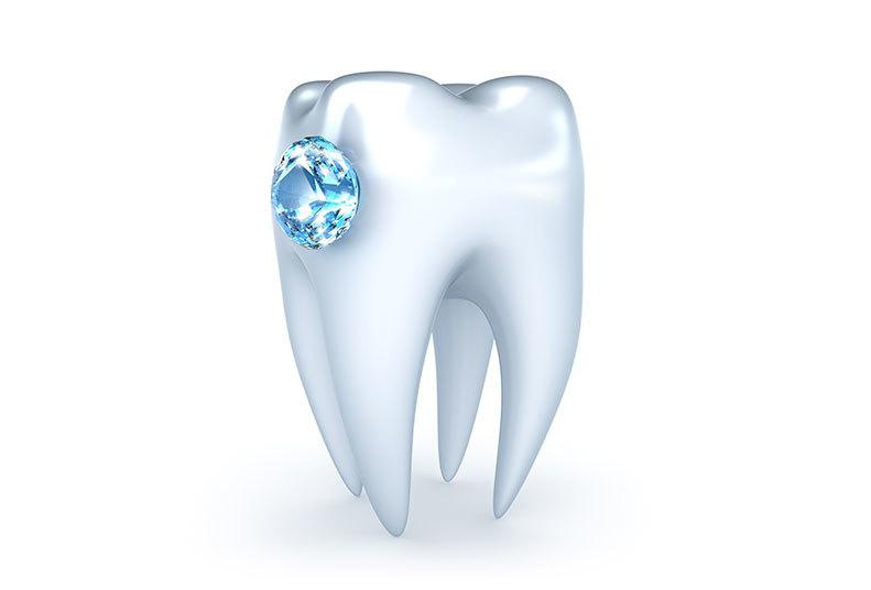 Tooth Jewellery…the Newest Trend